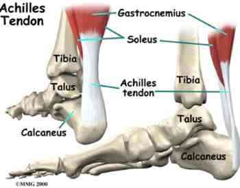 Shin splints and the Achilles tendon.