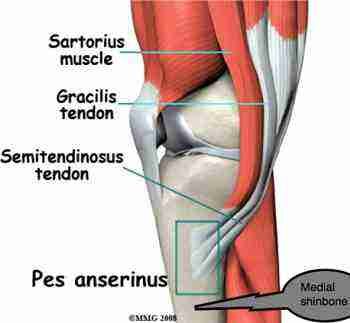 Shin splints affects the semitendinosis muscle.