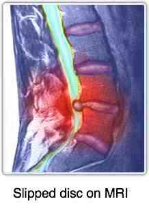 A slipped disc as seen on an MRI.