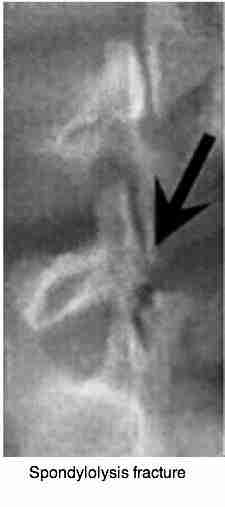 An x-ray of the lumbar spine showing how a spondylolysis causes a condition known as spondylolysthesis.
