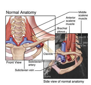Thoracic outlet syndrome or TOS.
