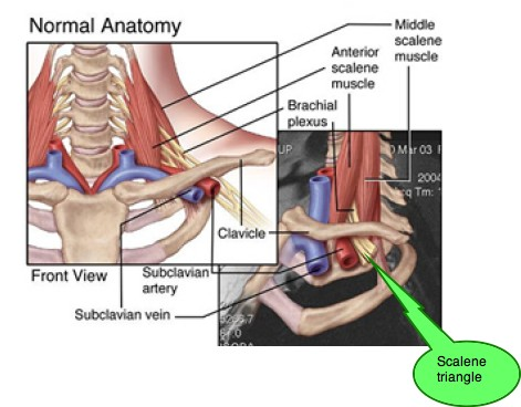 Beantown Physio | PT Tip of the Month Archive | Thoracic Outlet ...
