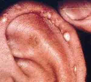 Gouty tophi are painful so don't let this nasty condition go untreated.