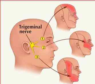 The distribution of the pain from trigeminal neuralgia and it's relationship to the TMJ.