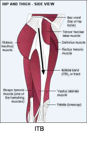 Upper leg pain from the ITB.