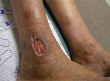 Varicose veins ulcer