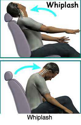 Flexion and extension injuries in whiplash during car accidents.