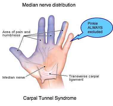 Bilateral Severe Carpal Tunnel Syndrome With Upper Arm