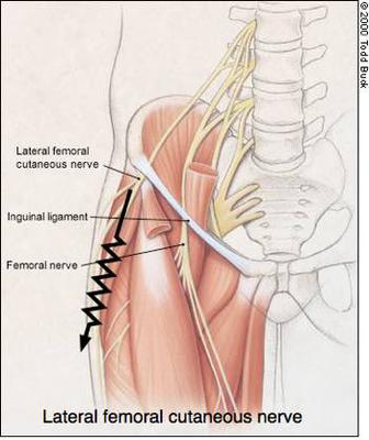 burning on front of thigh, above knee, while sleeping - femoral nerve?, Muscles