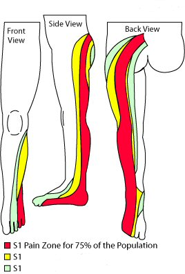 S1 dermatome, back of the thigh to the outer foot.