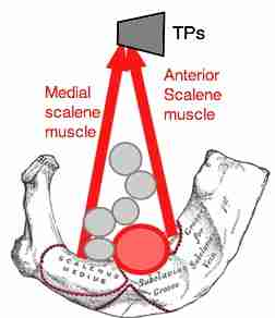 Thoracic outlet syndrome is characterised by loss of blood in the interscalen triangle when raising your arms above your head.