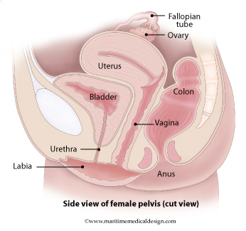 List of 160 disease causes of Pelvic pain , patient stories ...