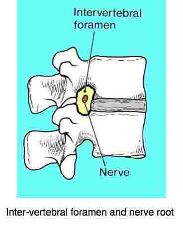 A sketch showing how the intervertebral foramen and the nerve root may cause leg pain.