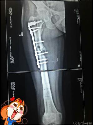 that is my femur.