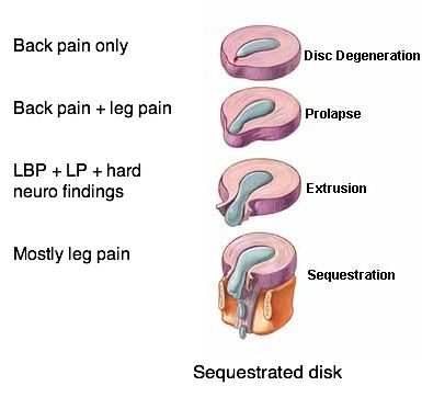 a brief look at the two types of muscular degeneration This inflammation can produce muscle tension, muscle spasms, and local tenderness in the back or neck if a nerve root becomes inflamed, pain and numbness may radiate into the arm and shoulder (called a cervical radiculopathy in cases of cervical disc degeneration), or into the hips or leg (called a lumbar radiculopathy , in cases of lumbar.