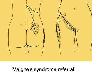 Maigne's syndrome radiates from the upper lumbar spine.