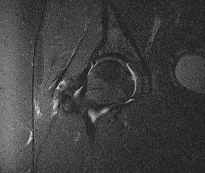 query labral tear?