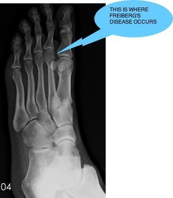 No signs of Freiberg's disease in John's foot