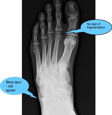 Signs of old sprained ankle. Untreated often progresses to chronic foot pain.