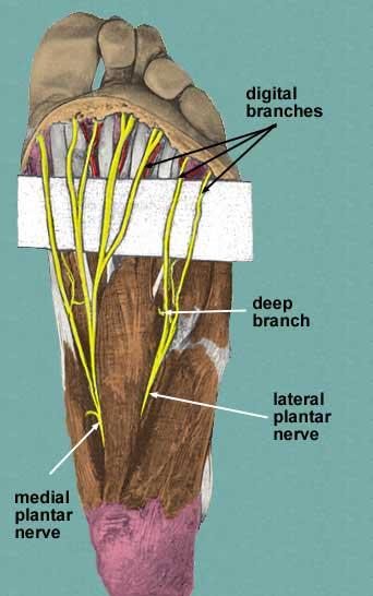 Mortonse Neuralgie Is Een Zenuwbeknelling Onder De Voet