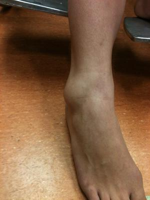 One of my ankle sprains.