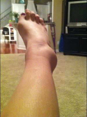 One of my worst ankle sprains