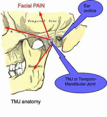 Neck Pain And Lower Skull Pain Radiating To The Basal Sides