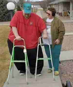 This obese man using a walker will clearly have worn hyaline cartilage.