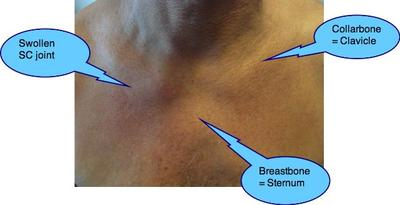 Tietzes syndrome, in this instance of the collarbone-sternal joint.