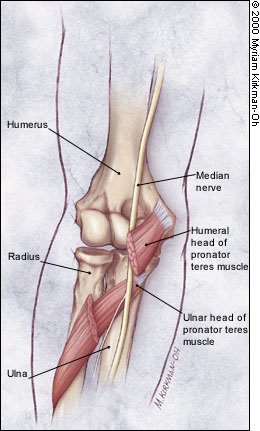 Diagram showing how the pronator teres muscle can mimic the pain and tingling caused by carpal tunnel syndrome.