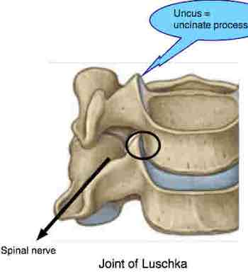 The uncinates are often injured in a whiplash injury