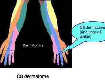 The yellow portion belongs to the C5 dermatome.