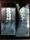 Side and Spinal XRay Standing