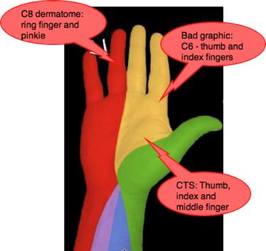 C8 dermatome