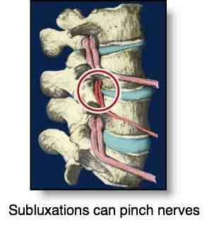 Chiropractic subluxation