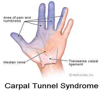 Carpal tunnel pain distribution
