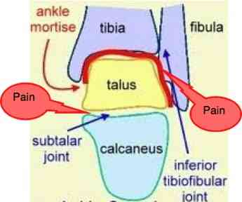 The cause of your Morton's neuroma is probably in the ankle