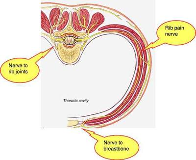 Rib pain: sometimes midback, sometimes also breastbone.