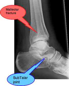 A malleolar fracture.