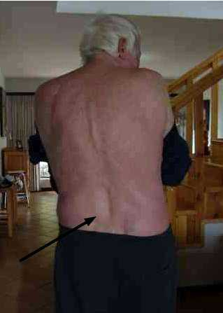 Postero Medial Slipped Disk Causes Lower Back And Often