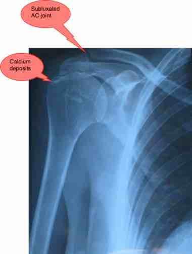 Arm pain due to a frozen shoulder.