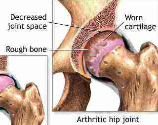 Choose Chiropractor Tzaneen for your hip arthritis long before it gets to this stage.
