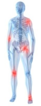 Positions in the skeleton where arthritis can occur.