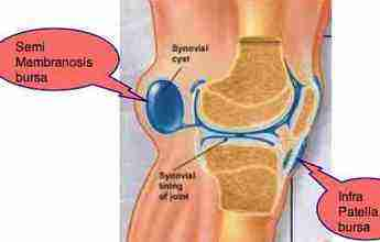 A ruptured Baker's cyst can cause severe knee pain, but behind the joint rather than the patellar.