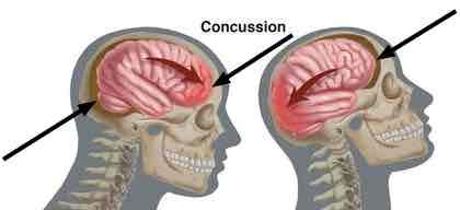 Brain injury in whiplash.