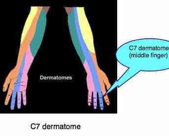 A picture revealing that the C7 dermatome affects mainly the middle finger.