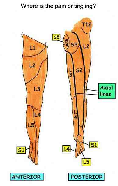 Dermatomes lower limb at chiropractic help