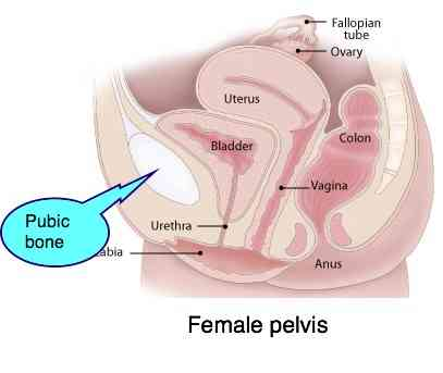 Female pelvis showing the location of pubic bone pain.