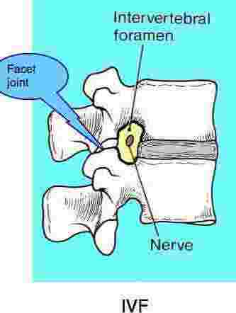 The inter vertebral foramen in the lumbar spine is where the nerve may be irritated.