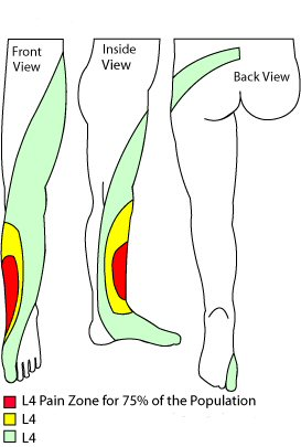 L4 dermatome in the thigh and leg, often affected in a slipped disc and lumbar stenosis.
